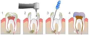 Endodonti 1
